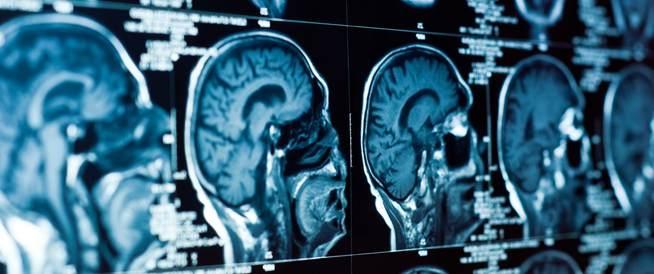 تقنية جديدة قد تساعد في استئصال أورام الدماغ بدقة