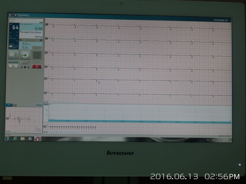 AL-MUBDAA Scientific Company in Dr.MAJED KHANJR / STRESS ECG with treadmill