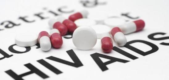 تشخيص الاصابة بالايدز AIDS