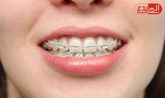 بروفيسور بريطاني : التقويم يسبب أضرارا باللثة وتراكم البلاك على الأسنان