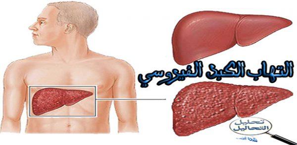 الصحة العالمية: 10% من المصابين بالتهاب الكبد الفيروسي يتلقون العلاج
