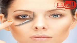 4 عوامل تعرضك للهالات الداكنة تحت العينين .. أبرزها الحساسية