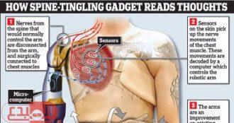 ابتكار أول ذراع اصطناعي يسيطر عليه أفكار المريض عن طريق الحبل الشوكي