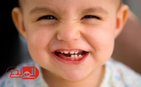 دراسة تؤكد 1 من كل 7 أطفال مصابون بتسوس الأسنان