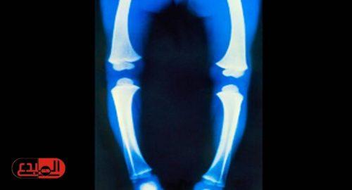 الأدوية المضادة للصرع تسبب كسور العظام للأطفال