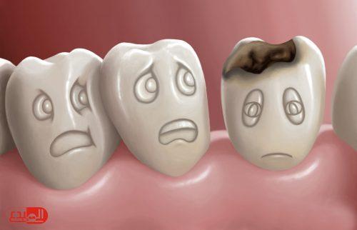دراسة: الأسبرين علاج لتسوس الأسنان !