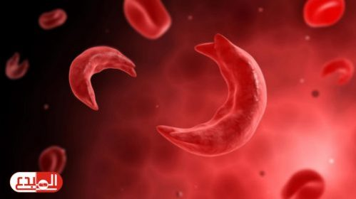 فقر الدم المنجلي Sickle Cell Anemia