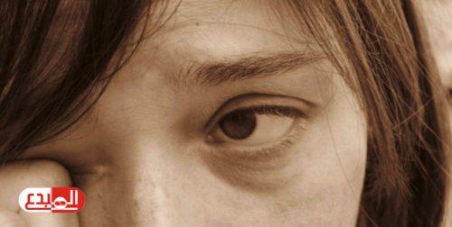 نصائح لعلاج التهاب العين في المنزل!