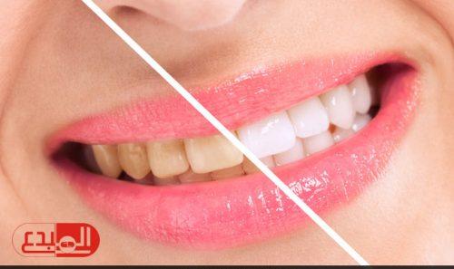 تخلص من اصفرار الأسنان في المنزل!