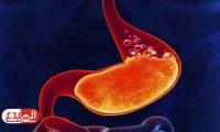 6 مشكلات تؤثر على عملية الهضم.. إليكم طرق علاجها