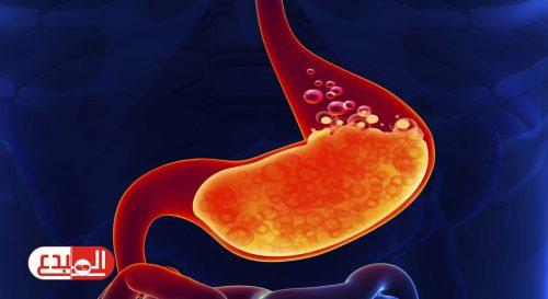 دراسة بريطانية: حرقان المعدة المستمر من علامات الإصابة بالسرطان