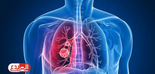 دارسة تشير إلى وجود علاقة بين المكملات الغذائية ومخاطر الإصابة بسرطان الرئة