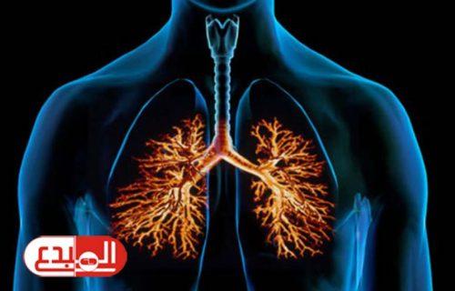 نصائح للتعامل مع التهاب الشعب الهوائية