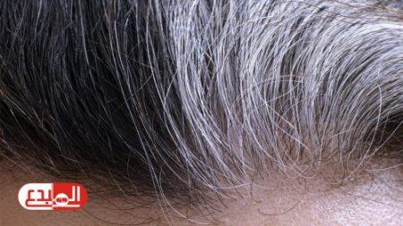 دراسة: الإجهاد في العمل يسبب ظهور الشعر الأبيض