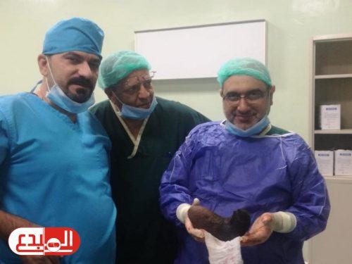 فريق طبي ينجح بإجراء عملية لإخراج كتلة من الشعر داخل معدة مريضة