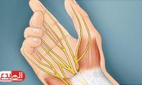 أسباب وأعراض وعلاج متلازمة النفق الرسغي