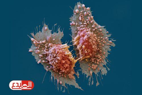 """دراسة أمريكية .. اكتشاف طريقة جديدة لعلاج السرطان """"من دون الكيماوي"""""""